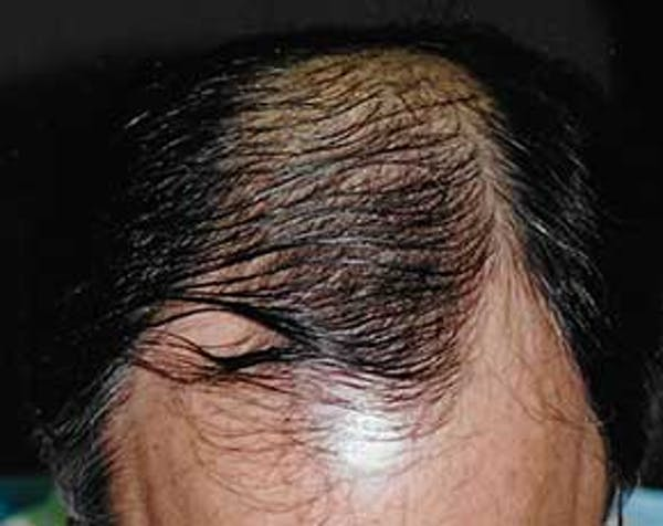 Hair Transplant Gallery - Patient 5883936 - Image 1