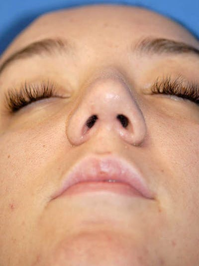 Rhinoplasty Gallery - Patient 5883937 - Image 32
