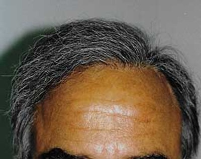 Hair Transplant Gallery - Patient 5883936 - Image 2