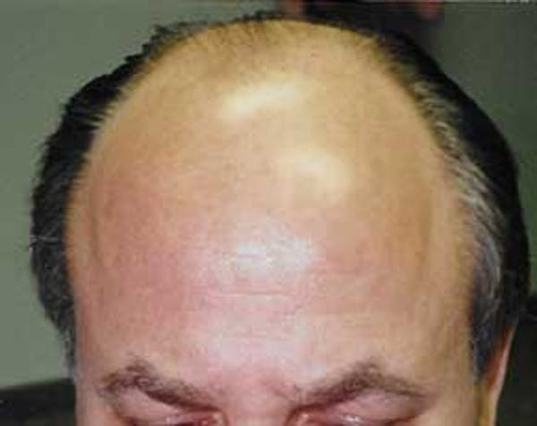 Hair Transplant Gallery - Patient 5883939 - Image 1
