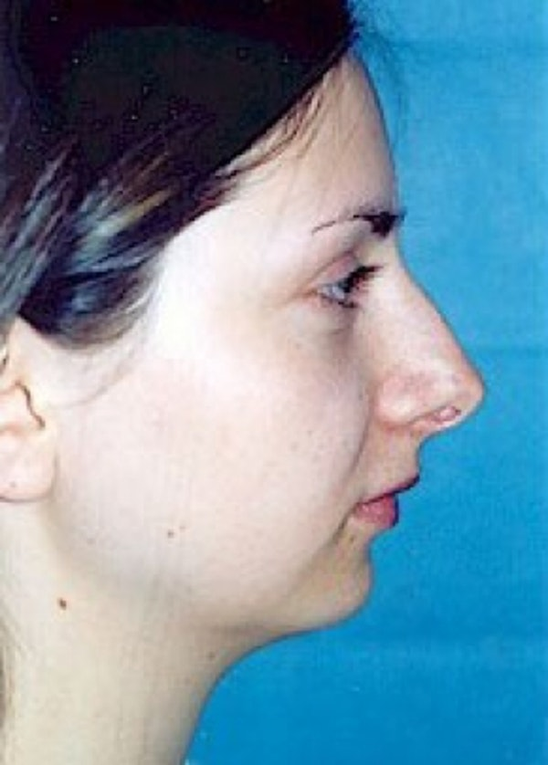 Rhinoplasty Gallery - Patient 5883940 - Image 1