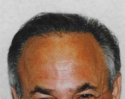 Hair Transplant Gallery - Patient 5883939 - Image 2