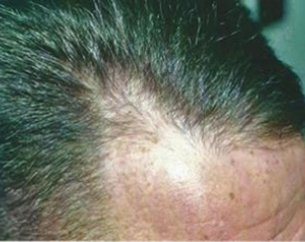 Hair Transplant Gallery - Patient 5883942 - Image 1