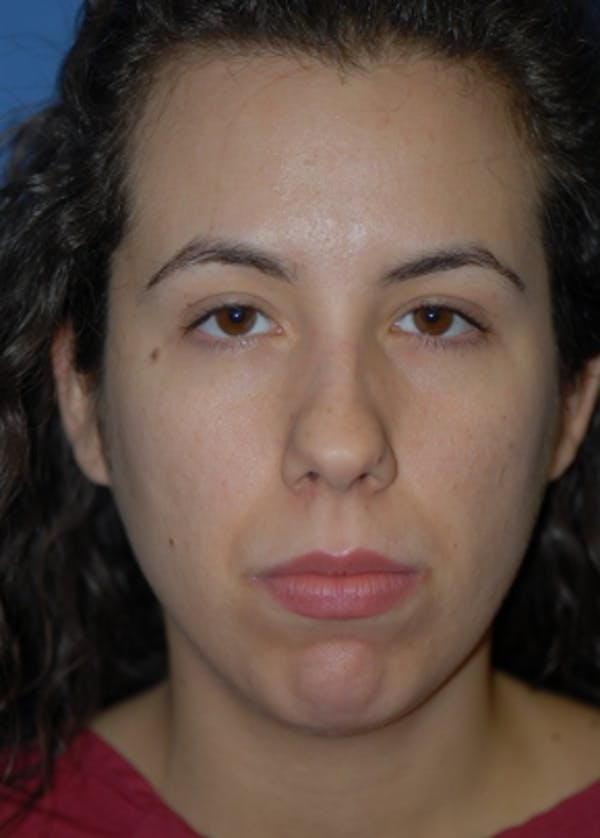 Rhinoplasty Gallery - Patient 5883944 - Image 1