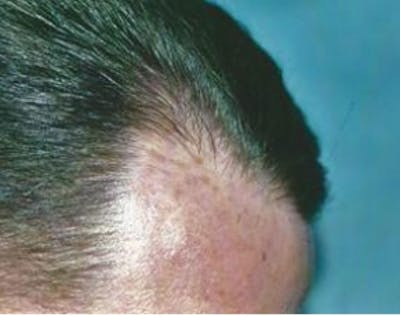 Hair Transplant Gallery - Patient 5883942 - Image 8