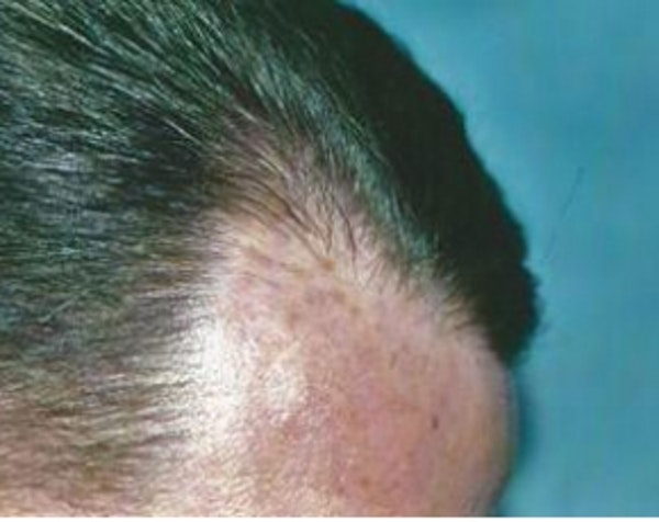 Hair Transplant Gallery - Patient 5883942 - Image 2