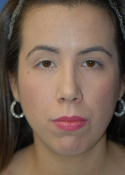 Rhinoplasty Gallery - Patient 5883944 - Image 2