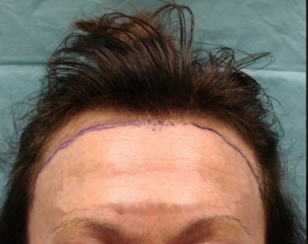 Hair Transplant Gallery - Patient 5883943 - Image 1