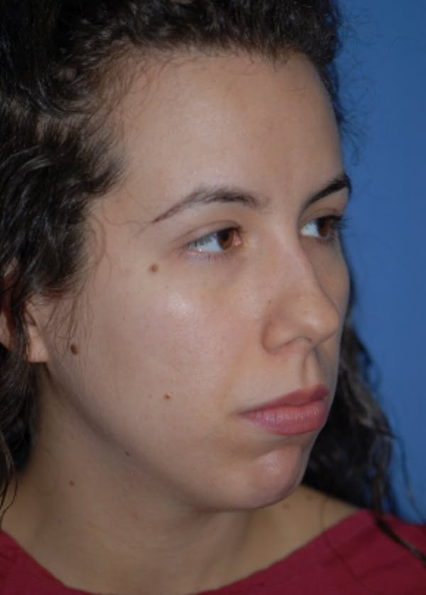 Rhinoplasty Gallery - Patient 5883944 - Image 3