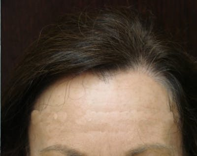 Hair Transplant Gallery - Patient 5883943 - Image 9