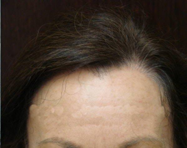 Hair Transplant Gallery - Patient 5883943 - Image 2