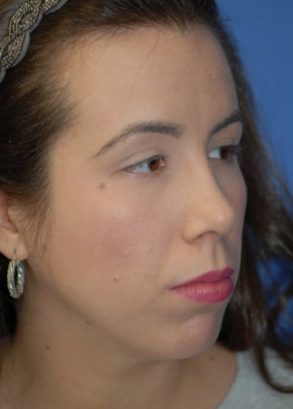 Rhinoplasty Gallery - Patient 5883944 - Image 4