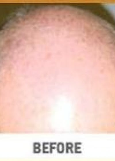 Hair Transplant Gallery - Patient 5883945 - Image 1