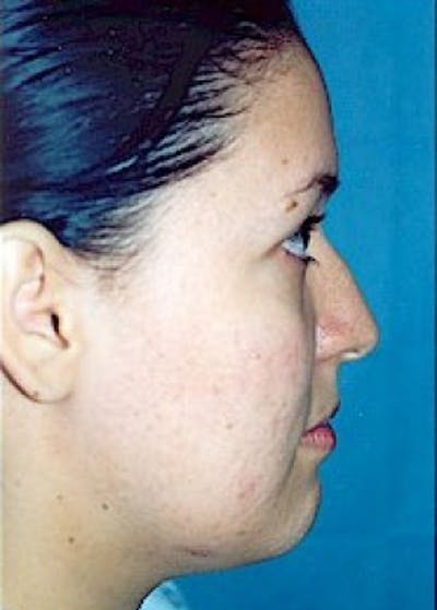 Rhinoplasty Gallery - Patient 5883947 - Image 1