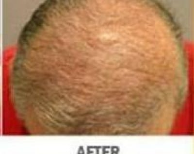 Hair Transplant Gallery - Patient 5883945 - Image 10