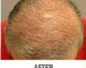 Hair Transplant Gallery - Patient 5883945 - Image 2