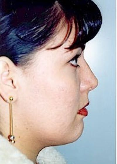 Rhinoplasty Gallery - Patient 5883947 - Image 35
