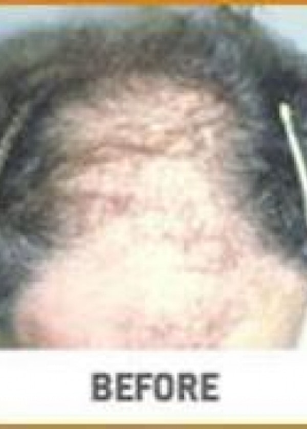 Hair Transplant Gallery - Patient 5883948 - Image 1