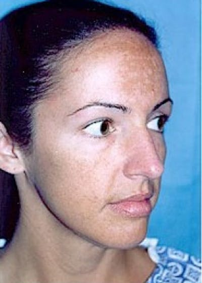 Rhinoplasty Gallery - Patient 5883949 - Image 1