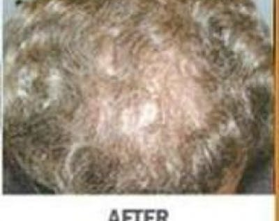 Hair Transplant Gallery - Patient 5883948 - Image 11