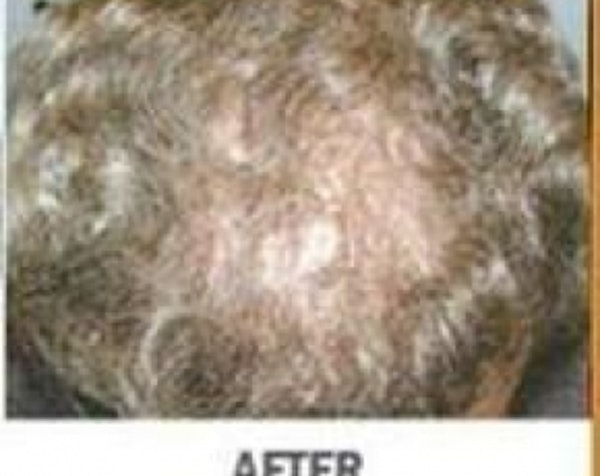 Hair Transplant Gallery - Patient 5883948 - Image 2