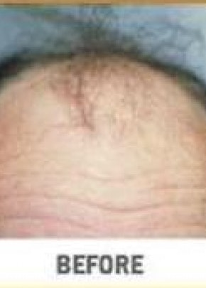 Hair Transplant Gallery - Patient 5883950 - Image 1