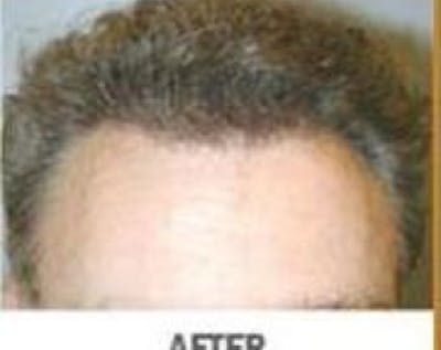 Hair Transplant Gallery - Patient 5883950 - Image 2