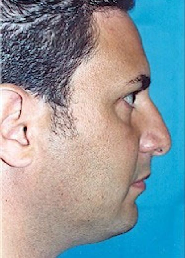 Rhinoplasty Gallery - Patient 5883951 - Image 1