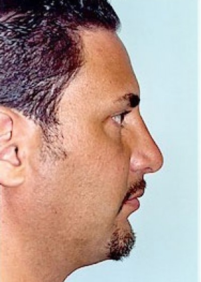 Rhinoplasty Gallery - Patient 5883951 - Image 2