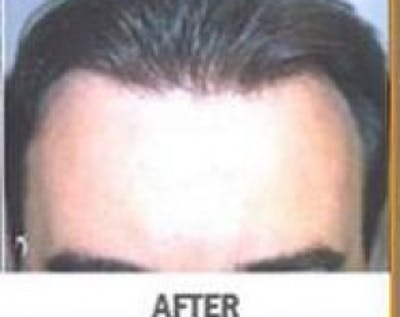 Hair Transplant Gallery - Patient 5883952 - Image 13