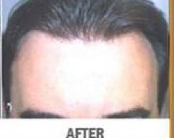 Hair Transplant Gallery - Patient 5883952 - Image 2