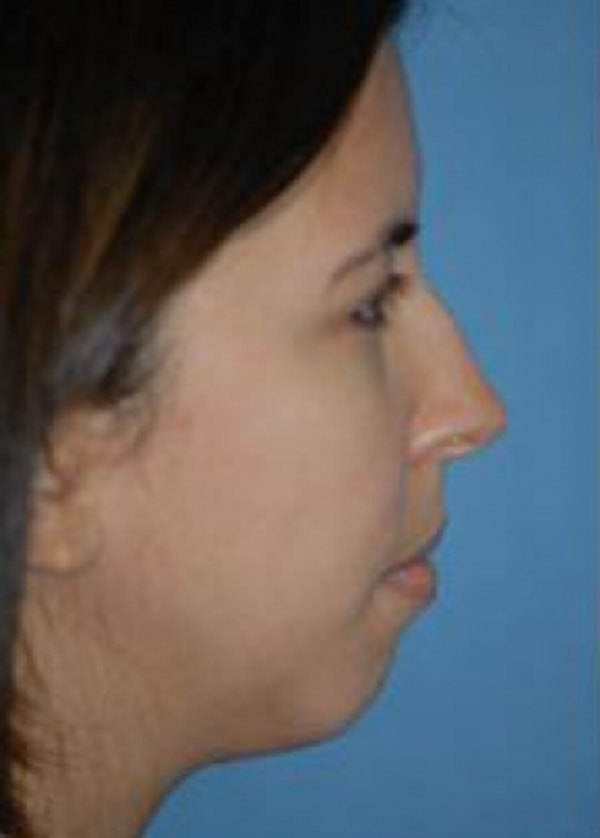 Rhinoplasty Gallery - Patient 5883957 - Image 1