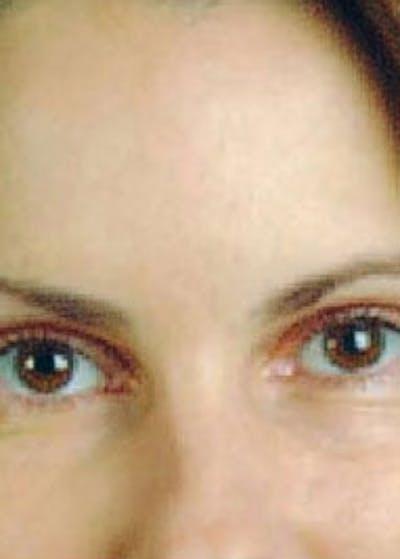 BOTOX Gallery - Patient 5883955 - Image 1
