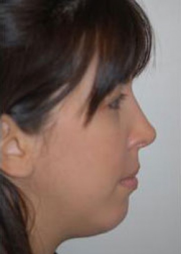 Rhinoplasty Gallery - Patient 5883957 - Image 2