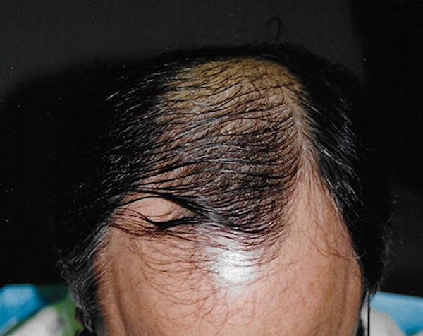 Hair Transplant Gallery - Patient 5883956 - Image 1