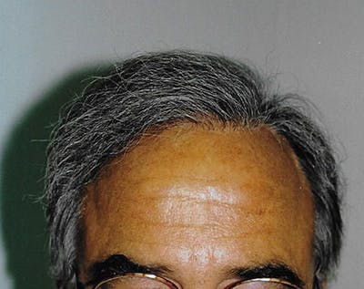 Hair Transplant Gallery - Patient 5883956 - Image 15