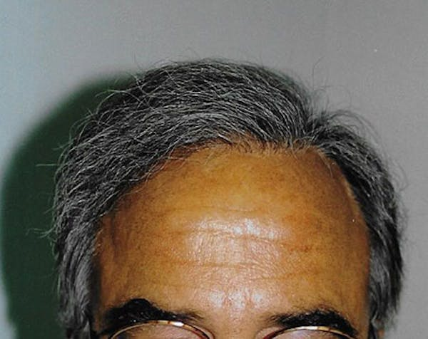 Hair Transplant Gallery - Patient 5883956 - Image 2
