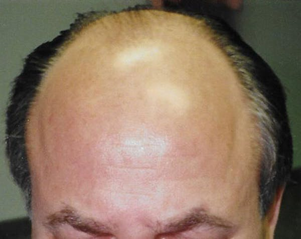 Hair Transplant Gallery - Patient 5883958 - Image 1