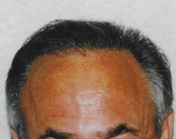 Hair Transplant Gallery - Patient 5883958 - Image 2