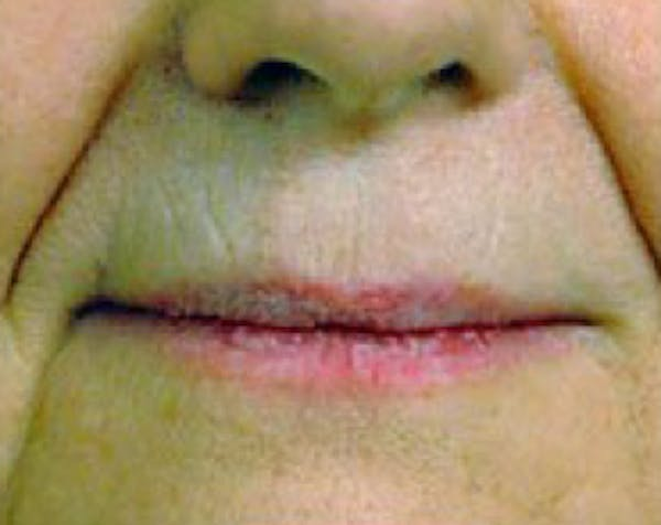 Fillers Gallery - Patient 5883959 - Image 1