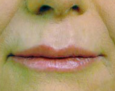 Fillers Gallery - Patient 5883959 - Image 2