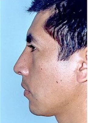 Rhinoplasty Gallery - Patient 5883961 - Image 2