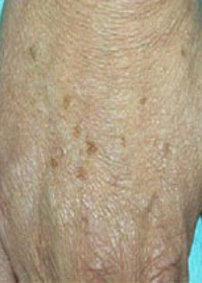 Fraxel Laser Gallery - Patient 5883962 - Image 1