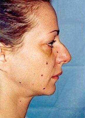 Rhinoplasty Gallery - Patient 5883963 - Image 1