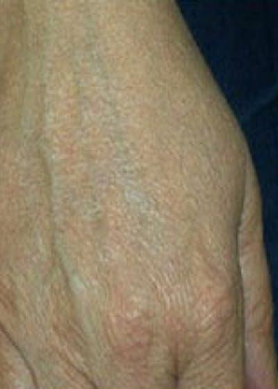 Fraxel Laser Gallery - Patient 5883962 - Image 2