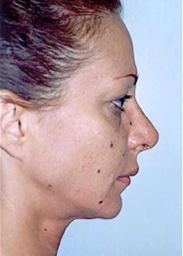Rhinoplasty Gallery - Patient 5883963 - Image 2