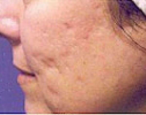 Fraxel Laser Gallery - Patient 5883964 - Image 1