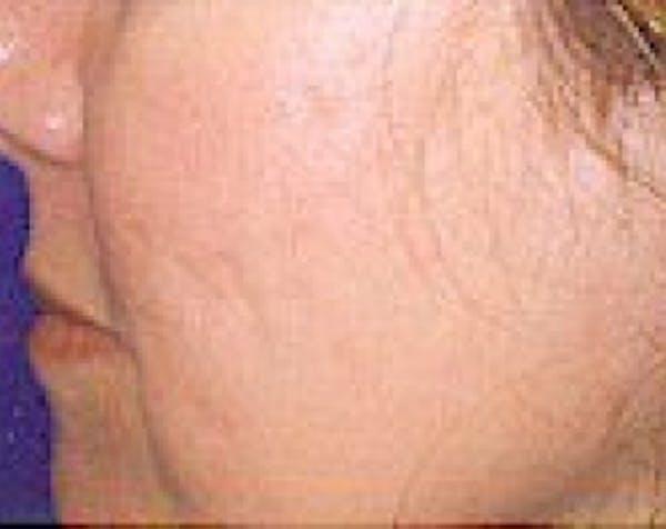 Fraxel Laser Gallery - Patient 5883964 - Image 2