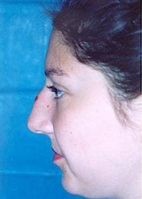 Rhinoplasty Gallery - Patient 5883967 - Image 1