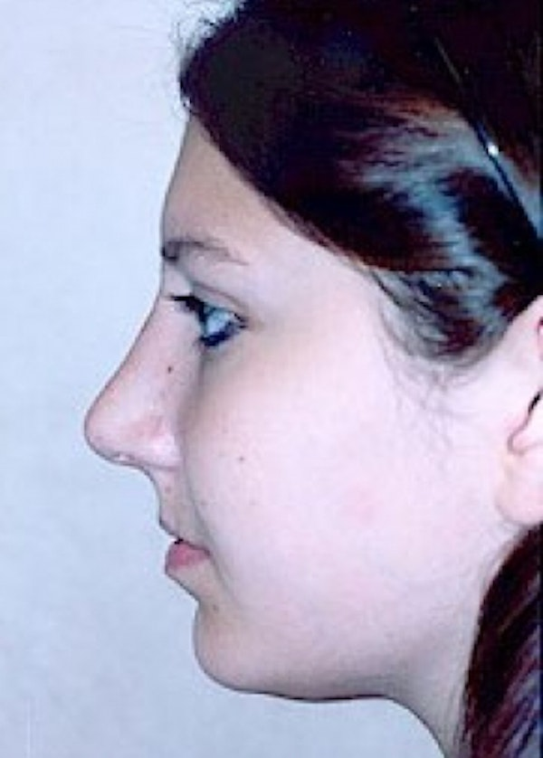 Rhinoplasty Gallery - Patient 5883967 - Image 2
